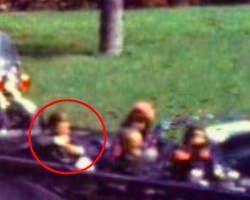 Einzelbild 228: Kennedy greift sich an den Hals